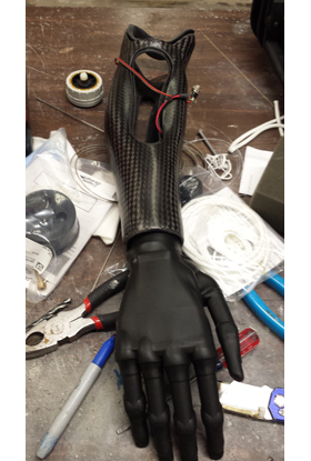 upper_prosthetic_solution