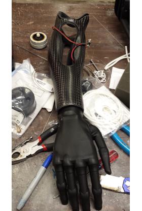 upper_prosthetic_solution